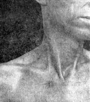 Больной, страдающий атрофическим циррозом печени. Видна «звездочка»