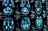 Причины опухоли головного мозга