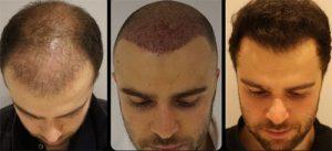 Принципы пересадки волос