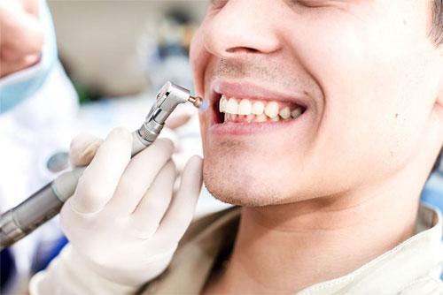 Профессиональная гигиена рта в стоматологии