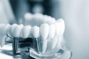 Имплантация зубов, вопросы приживаемости имплантатов