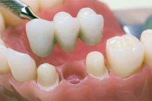 Микро-протезирование зубов