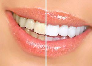 Самые популярные процедуры эстетической стоматологии