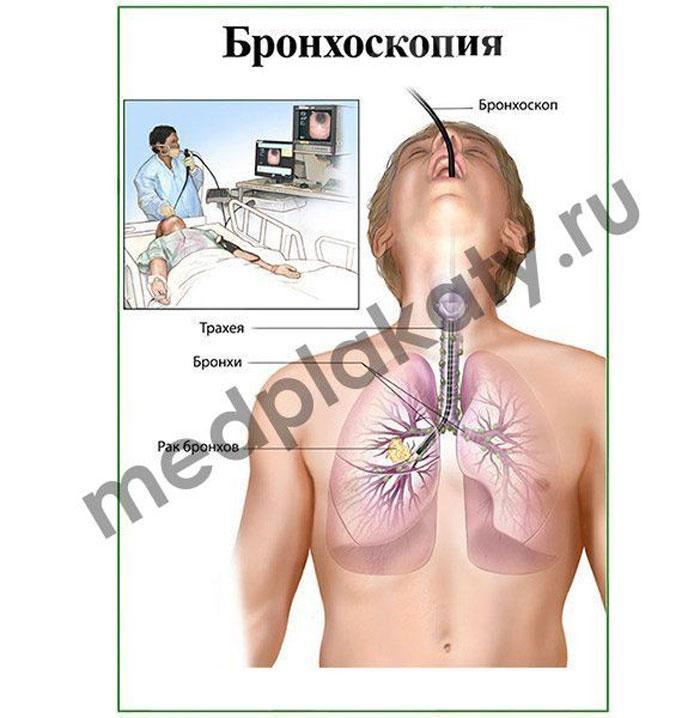 Наглядные пособия для медиков