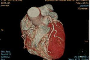 Самые распространенные болезни сердца