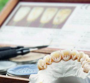 Прогрессивные техники восстановления зубов