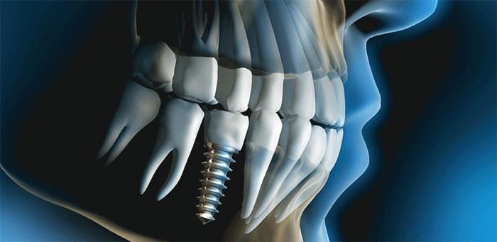 Несъемное протезирование на имплантах: специфика и преимущества