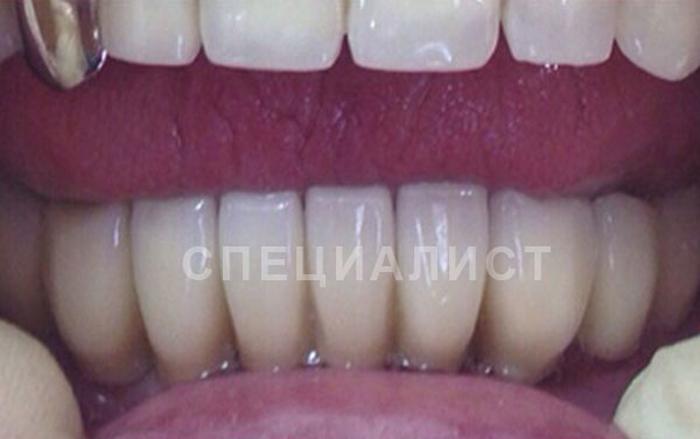 Виды имплантов в стоматологии
