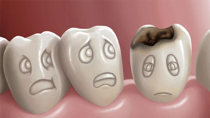 Лечение зубов: особенности и специфика